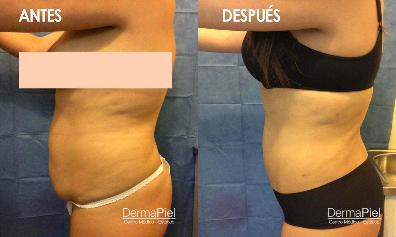 Liposucción | Dermapiel